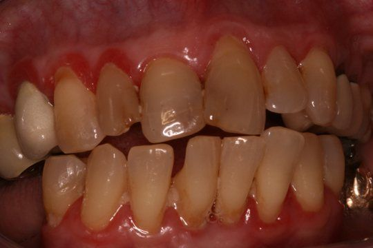 Gum Disease Pictures: What do Healthy Gums Look Like?