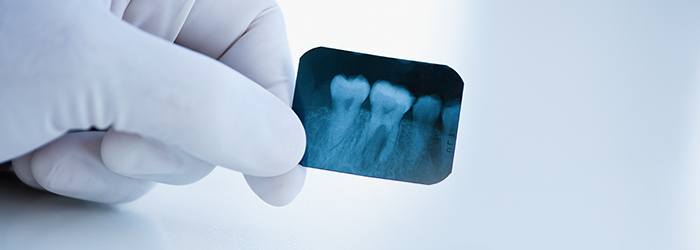 Impacted Wisdom Teeth: Symptoms, Types & Removal | Crest