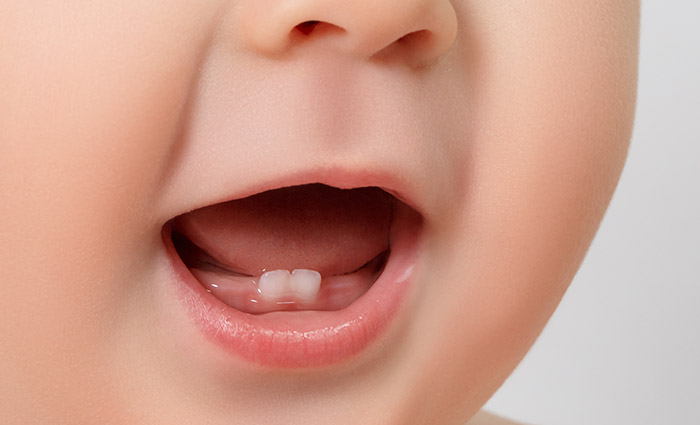 Toddler tooth decay