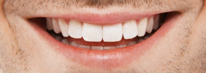 Actual results of crest white strips