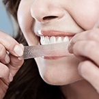 How-to-Get-Whiter-Teeth-and-Rid-of-Stains-145x145