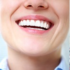 Affordable-and-Cheap-Teeth-Whitening-Options-145x145