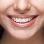At-Home-Teeth-Whitening-More-Than-a-White-Bright-Smile-145x145