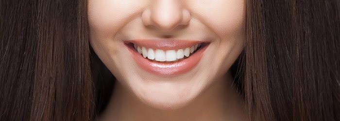 At-Home-Teeth-Whitening-More-Than-a-White-Bright-Smile-700x250