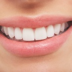 How-Much-Does-Teeth-Whitening-Cost-145x145