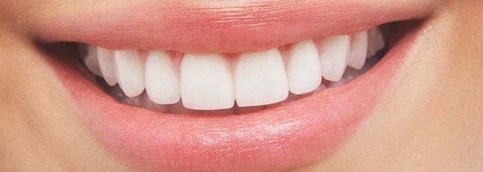 How Much Does Teeth Whitening Cost Crest