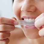 What-is-the-Best-Way-to-Whiten-Teeth-145x145