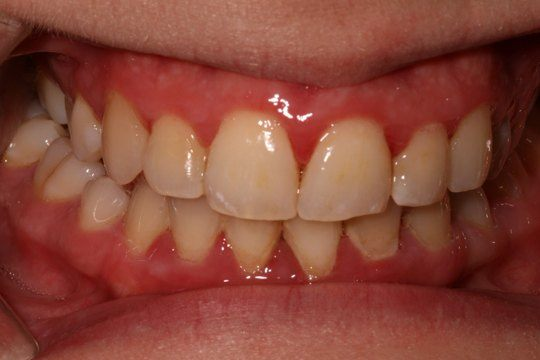 Gum Disease Pictures What Do Healthy Gums Look Like