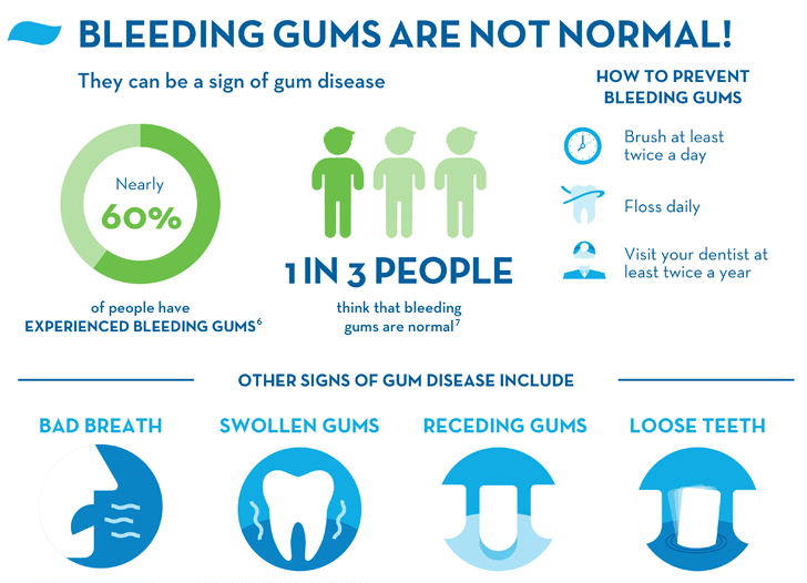 Bleeding Gums: Causes, Treatments, and Prevention | Crest